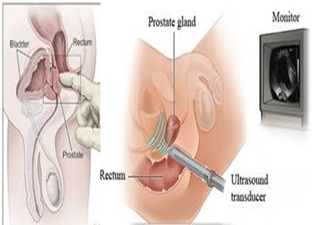 prostatitis clear discharge